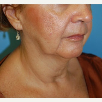 45-54 year old woman treated with Non Surgical Lift before 1606181