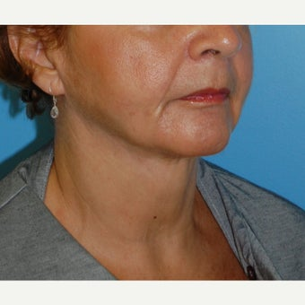 45-54 year old woman treated with Non Surgical Lift after 1606181