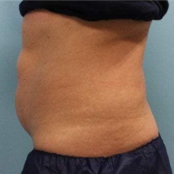 35-44 year old woman treated with CoolSculpting before 2121875