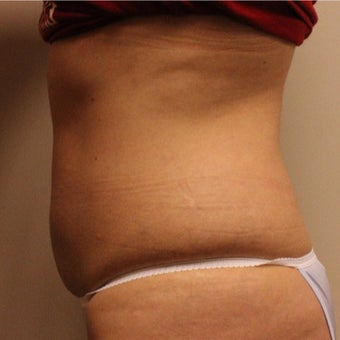 35-44 year old woman treated with CoolSculpting after 2121875