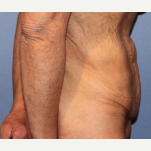 55-64 year old woman treated with Tummy Tuck before 3215170