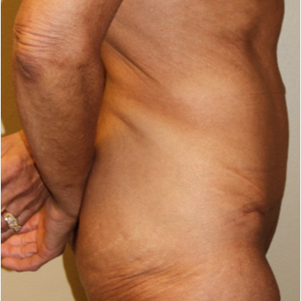 55-64 year old woman treated with Tummy Tuck after 3215170