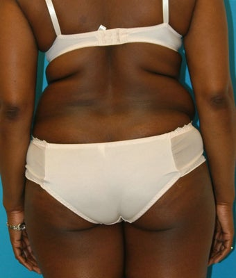 25-34 year old woman treated with Tummy Tuck 1668734