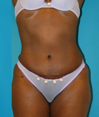25-34 year old woman treated with Tummy Tuck after 1668734