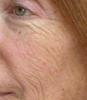 55-64 year old woman treated with ProFractional Laser before 3032053