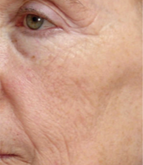 55-64 year old woman treated with ProFractional Laser after 3032053