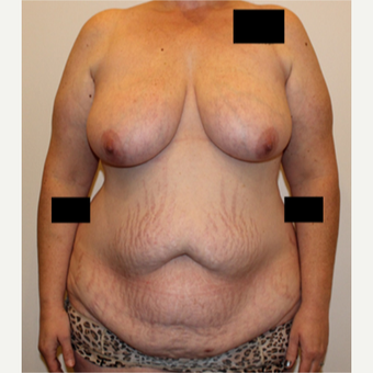 35-44 year old woman treated with Mommy Makeover before 2999805