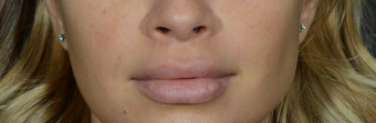 Lip Lift to give a better definition and shorten a heavy lip after 1521385