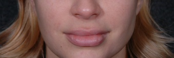 Lip Lift to give a better definition and shorten a heavy lip before 1521385