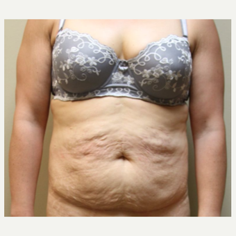 35-44 year old woman treated with Tummy Tuck before 2935657