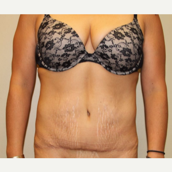 35-44 year old woman treated with Tummy Tuck after 2935657