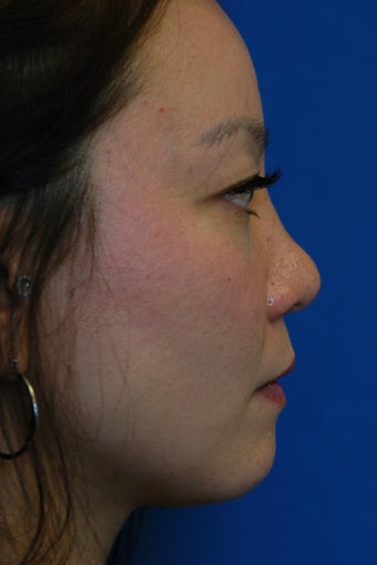 Nose Filler, Nonsurgical Rhinoplasty, Nonsurgical Nose Job, Nose Augmentation