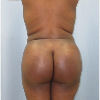 25-34 year old woman treated with Brazilian Butt Lift after 3855252
