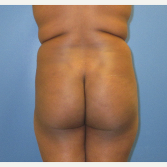 25-34 year old woman treated with Brazilian Butt Lift before 3855252