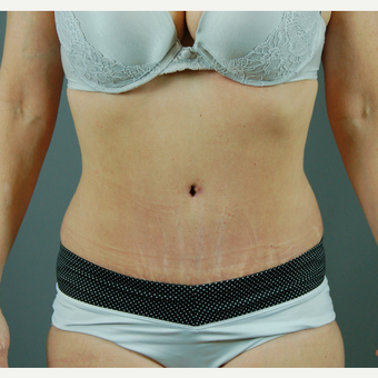 35-44 year old woman treated with Tummy Tuck after 3310806