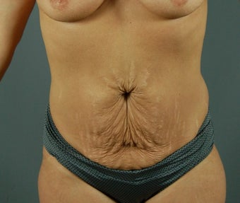 35-44 year old woman treated with Tummy Tuck before 3310806