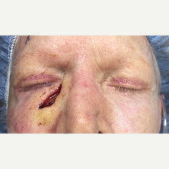 70+ year old female, with lower eyelid/cheek skin cancer reconstruction. before 3447077