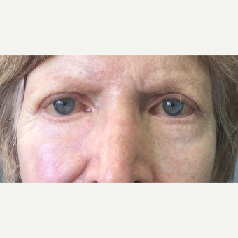 70+ year old female, with lower eyelid/cheek skin cancer reconstruction. after 3447077