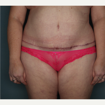 35-44 year old woman treated with Tummy Tuck after 3616154