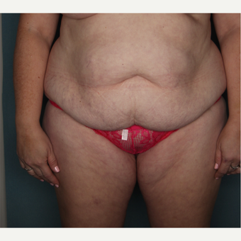 35-44 year old woman treated with Tummy Tuck before 3616154