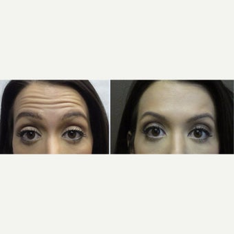 18-24 year old woman treated with Botox before 2360667