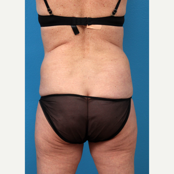 45-54 year old woman treated with Liposuction before 3208659