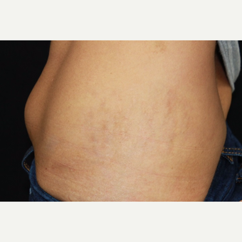 32 year old female treated with Fraxel for stretch marks (striae) after pregnancy.