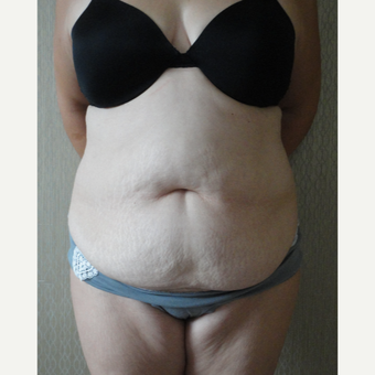 45-54 year old woman treated with Tummy Tuck before 3145772