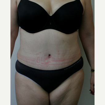 45-54 year old woman treated with Tummy Tuck after 3145772