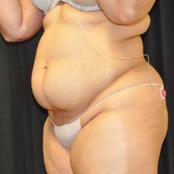 25-34 year old woman treated with Liposuction before 3671440