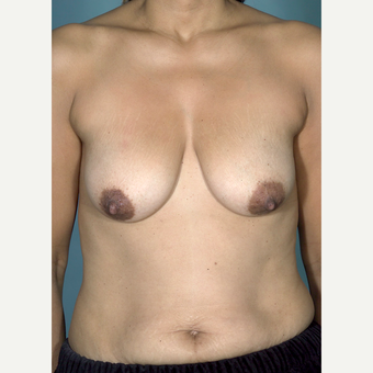45-54 year old woman treated with Breast Lift before 3742465