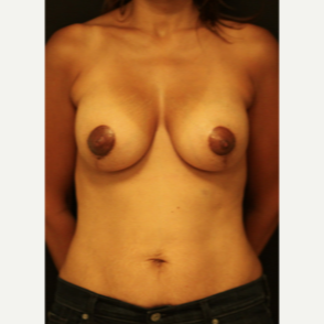45-54 year old woman treated with Breast Lift after 3742465
