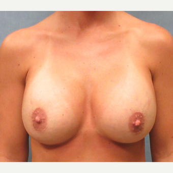25-34 year old woman treated with Breast Implant Revision after 3174743
