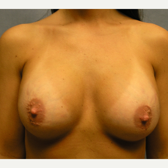 25-34 year old woman treated with Breast Implant Revision before 3174743