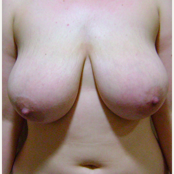 25-34 year old woman treated with Breast Reduction before 2806676