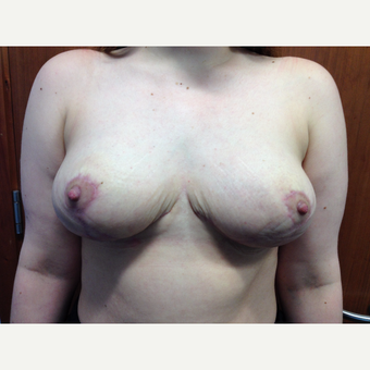 25-34 year old woman treated with Breast Reduction after 2806676