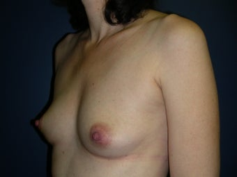 Breast Reconstruction-Direct-to-Implant  581313