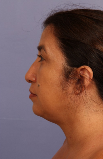 45-54 year old woman treated with Kybella before 2114781