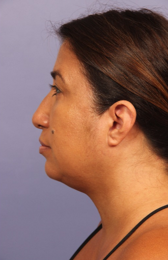 45-54 year old woman treated with Kybella after 2114781