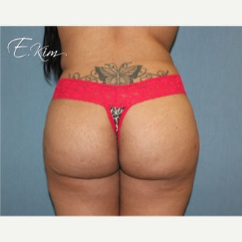 18-24 year old woman treated with Brazilian Butt Lift after 2623190