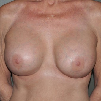 55-64 year old woman treated with Breast Implants after 1809548