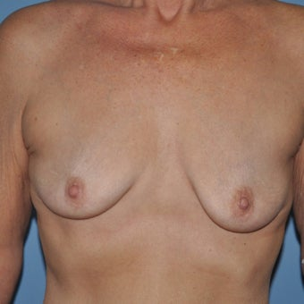 55-64 year old woman treated with Breast Implants before 1809548