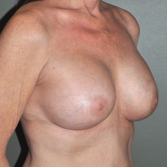 55-64 year old woman treated with Breast Implants 1809548