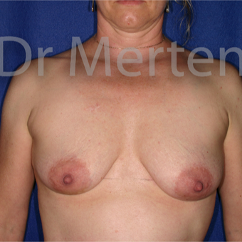 35-44 year old woman treated with Breast Augmentation before 3555414