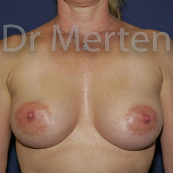 35-44 year old woman treated with Breast Augmentation after 3555414