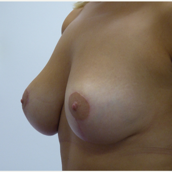 25-34 year old woman treated with Breast Lift with Implants after 3833104