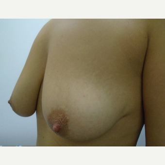 25-34 year old woman treated with Breast Lift with Implants before 3833104