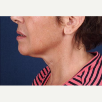 Kybella used as non-surgical treatment for the neck line after 3725587
