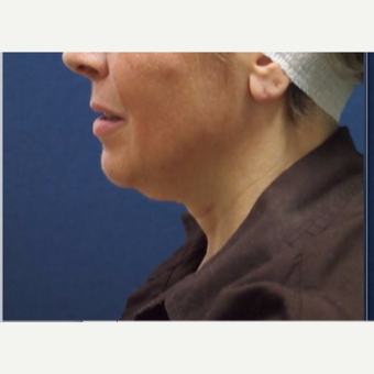 Kybella used as non-surgical treatment for the neck line before 3725587