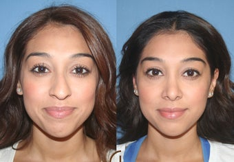 Ethnic Rhinoplasty before 418263